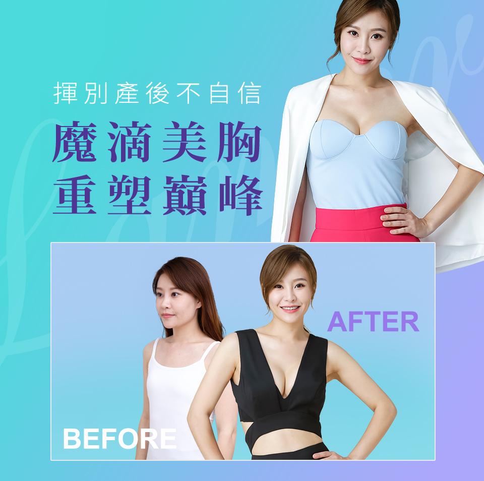 晶華醫美整形診所 - 台北桃園整形外科手術、醫學美容服務